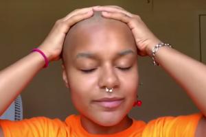 Influencer fica careca ao vivo quando fazia procedimento químico para alisar cabelos. Veja