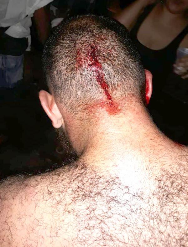 Rapaz foi atingido com garrafas de vidro