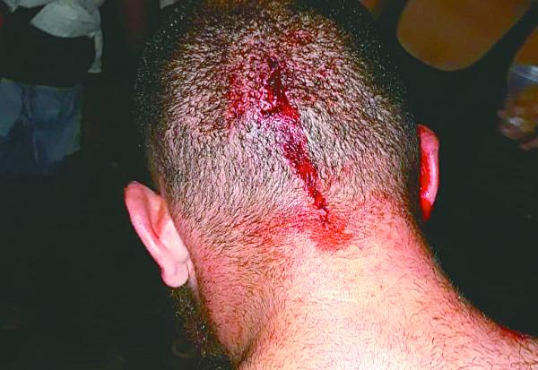 Rapaz agredido por usar bon\u00e9 do MST