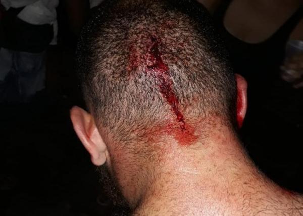 Na segunda-feira, jovem com bon\u00e9 do MST foi agredido em Curitiba
