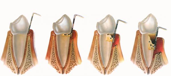Dentes saudável e com osteoporose inicial, moderada e avançada