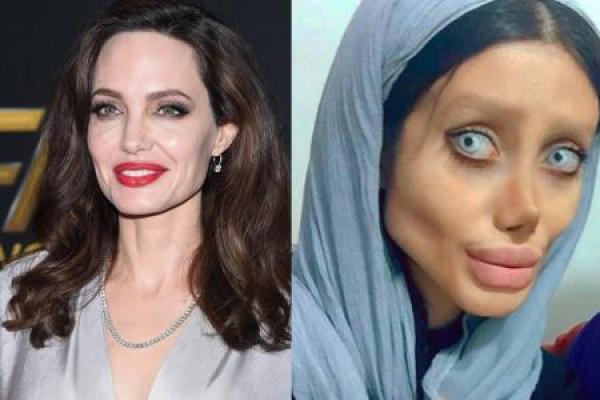 Iraniana faz mais de 50 plásticas para ficar parecida com Angelina Jolie